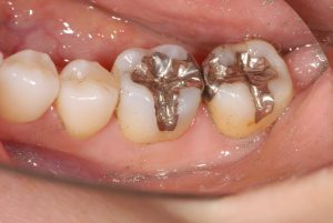 DSC 0928 300x201 - 銀歯をセラミックインレーに 変えて白く自然に