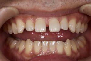DSC 1507 300x200 - すっき歯治療は簡単な ダイレクトボンディング治療