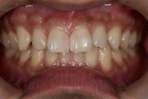 DSC 1516 300x200 - すっき歯治療は簡単な ダイレクトボンディング治療