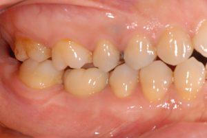 DSC 0844 300x201 - 奥歯のインプラント治療 削らないで治療できます。