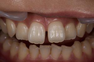 DSC 1523 300x200 - すきっ歯治療 ダイレクトボンディング