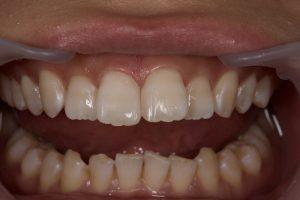 DSC 1525 300x200 - すきっ歯治療 ダイレクトボンディング