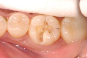DSC 0024 300x201 - 歯髄壊死