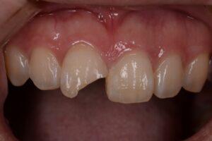DSC 1600 300x200 - 前歯が折れた。ダイレクトボンディングで治した症例