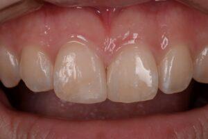 DSC 1611 1 300x200 - 前歯が折れた。ダイレクトボンディングで治した症例