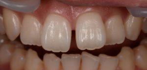 DSC 1524 コピー 300x144 - 歯の隙間をダイレクトボンディングで!! 「50代・審美歯科治療のことなら 初台・代々木 岡歯科医院』