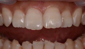 DSC 1525 コピー 300x173 - 歯の隙間をダイレクトボンディングで!! 「50代・審美歯科治療のことなら 初台・代々木 岡歯科医院』