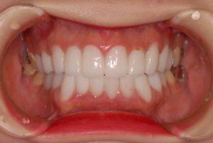 DSC 0031 300x201 - 美容外科での審美治療の結果