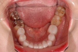 DSC 0035 300x201 - 美容外科での審美治療の結果
