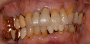 DSC 0972 コピー 300x148 - セミナーに行ってきました ~40代・インプラント治療のことなら 初台・幡ヶ谷 岡歯科医院
