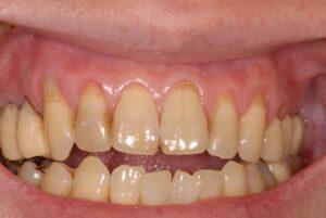 DSC 0149 300x201 - 根面被覆 歯の根っこが露出して心配です‼️
