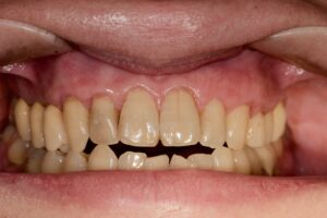 DSC 4346 300x200 - 根面被覆 歯の根っこが露出して心配です‼️