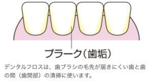 6729E941 05E2 4899 98F9 F91362DBFBC1 300x160 - デンタルフロスは【歯周病治療なら 初台岡歯科医院】