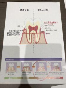 semi3 225x300 - 歯周病予防セミナー 【新宿 初台 代々木 インプラント ホワイトニング 岡歯科医院】