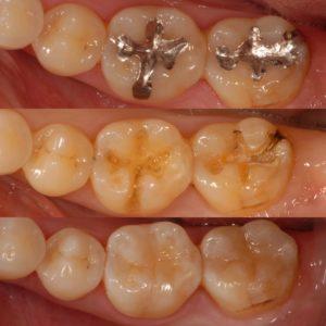 0E211E21 556E 442E A2DC 16F2885F88F6 300x300 - ダイレクトボンディング<初台 審美歯科 歯周病 岡歯科>