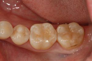 fullsizeoutput 3e41 300x201 - ダイレクトボンディング<初台 審美歯科 歯周病 岡歯科>