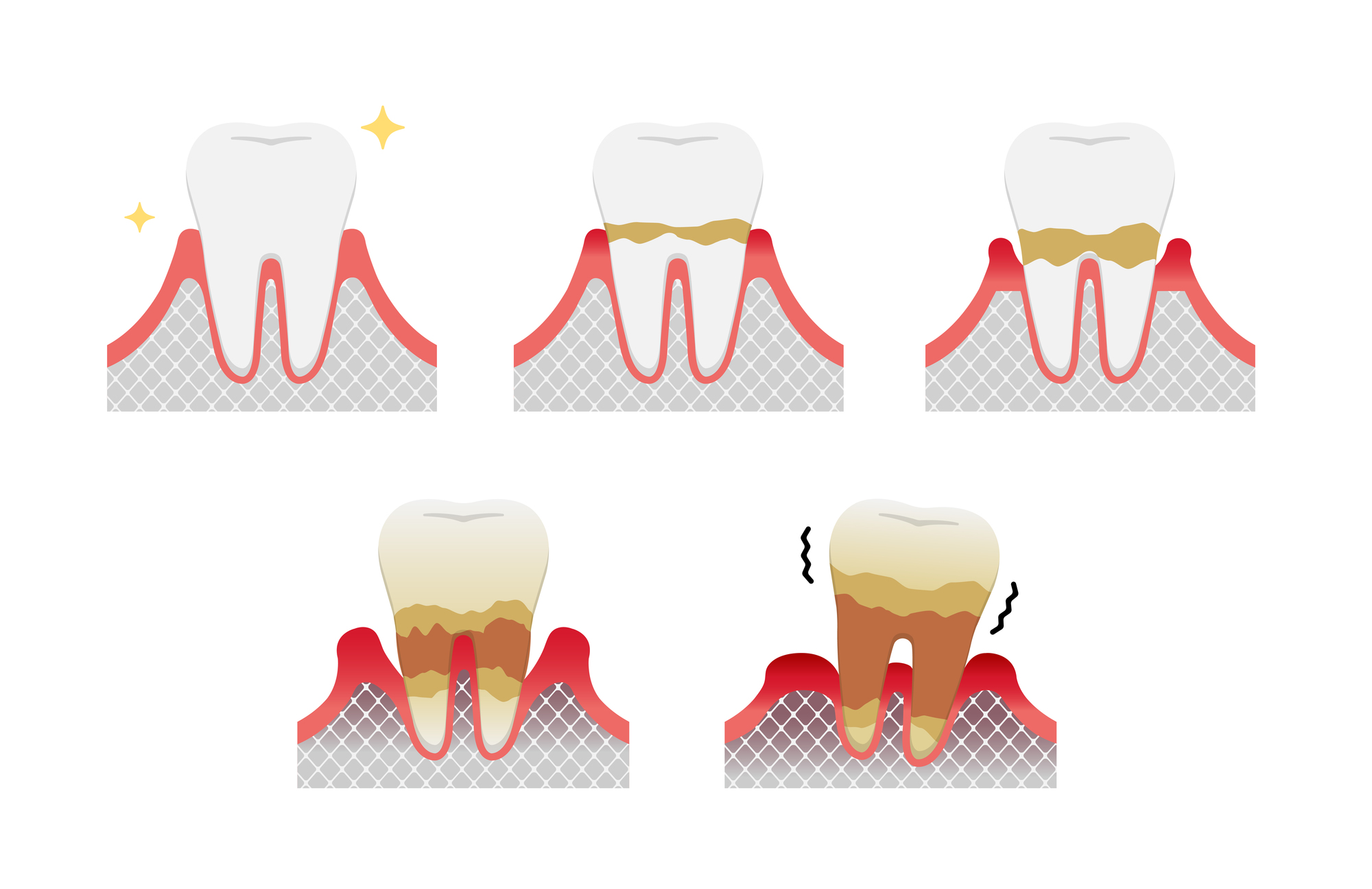 pixta 65624369 M - はじめての歯周病治療