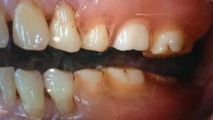 DSC 1777 300x169 - スマイルデンチャー〈初台 岡歯科医院〉