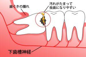 AdobeStock 135890094 1 300x200 - 親知らずの治療・抜歯