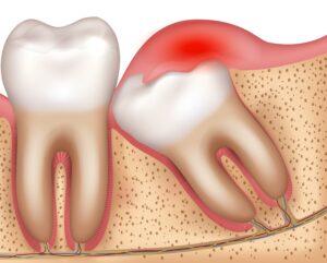 AdobeStock 244574721 2 300x241 - 親知らずの治療・抜歯