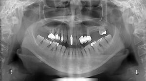 483 300x166 - 歯周病について