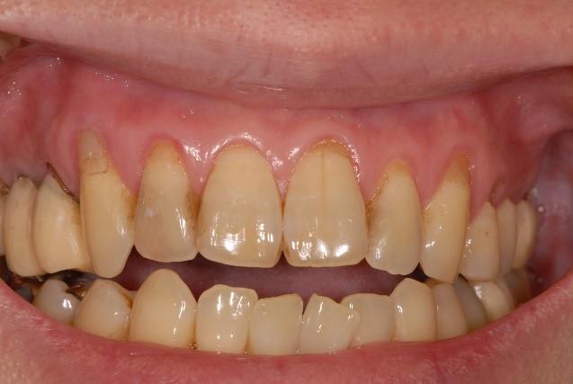 歯肉の後退治療前