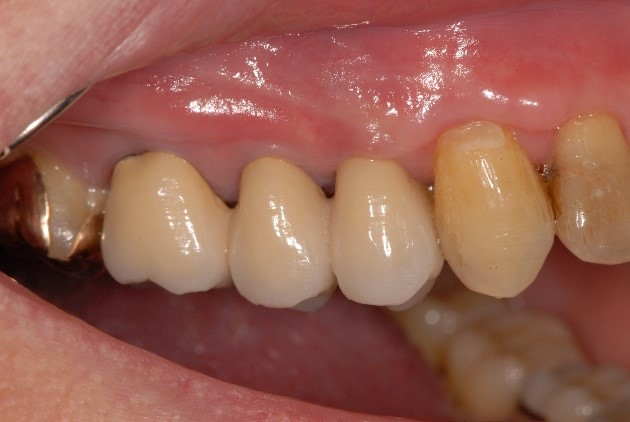 歯肉の後退治療後1