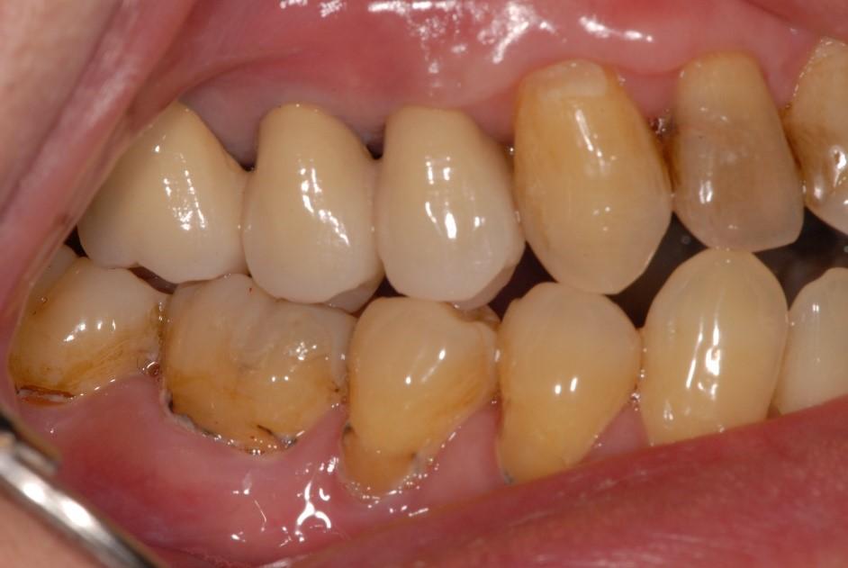 歯肉の後退治療後2